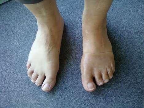 Life-Like Prosthetic Limbs