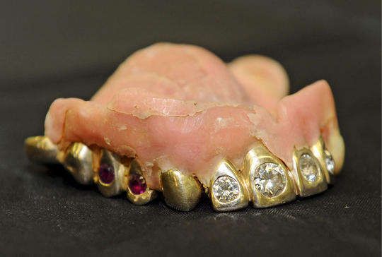 Denture Crown Jewels