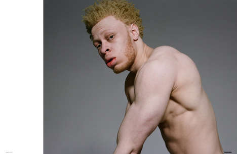 Inclusive Albino Editorials - 'The White Disease' Uses Albino Models to Challenge Beauty Standards