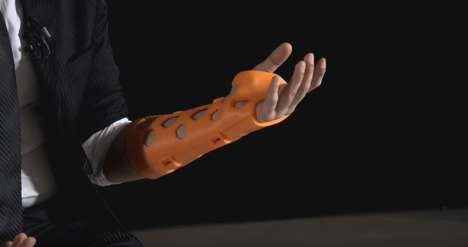 Breathable 3D-Printed Casts