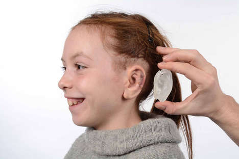 3D-Printed Ear Prosthetics