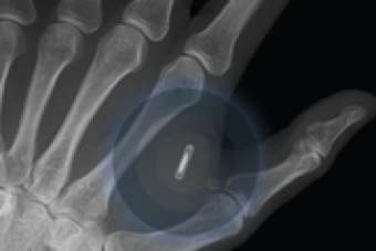 Tech-Controlling Implantable Microchips