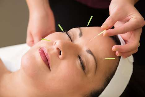 Facial Acupuncture Treatments