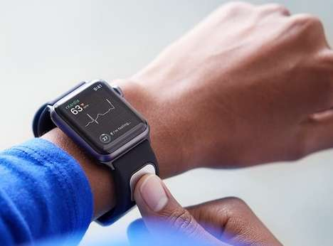 FDA-Approved EKG Smartwatch Straps