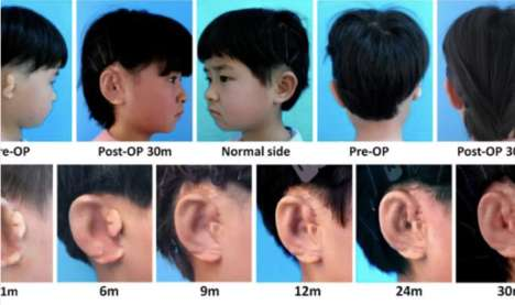 In Vitro Ear Regeneration - New Ears Have Been Grown in 3D-Printed Molds for Kids Born with Microtia