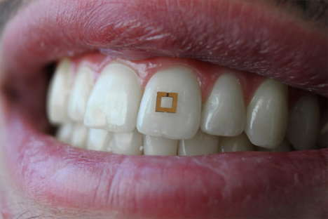 In-Mouth Tracking Wearables - Nutrition Can Now Be Better Controlled with This Tooth-Mounted Sensor