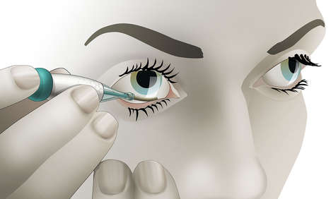 Glucose-Monitoring Contact Lenses
