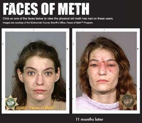 Drug Induced Makeovers