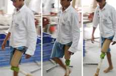Prosthetics for the Poor - JaipurKnee Project's $20 Artificial Knees to Developing World