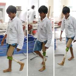 JaipurKnee Project's $20 Artificial Knees to Developing World