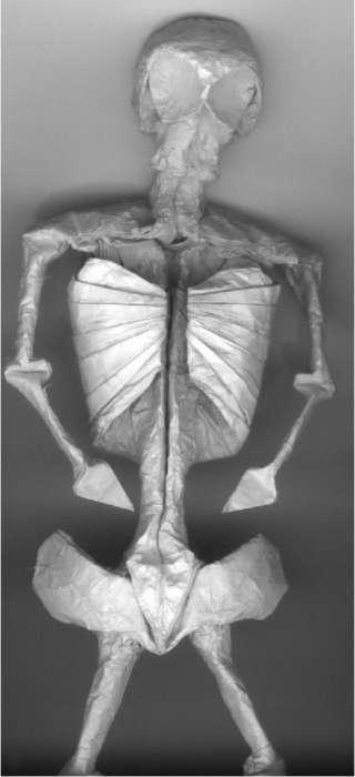 Anatomical Origami