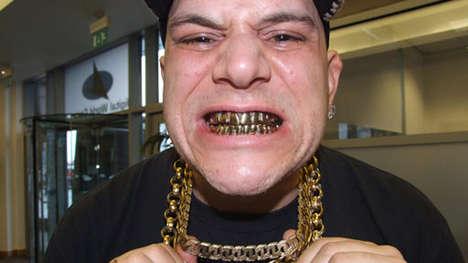 $7,000 Gold Teeth
