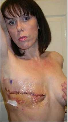 Unbanning Breast Photos - Cancer Victim Wins Right to Bare Mastectomy Scar on Facebook