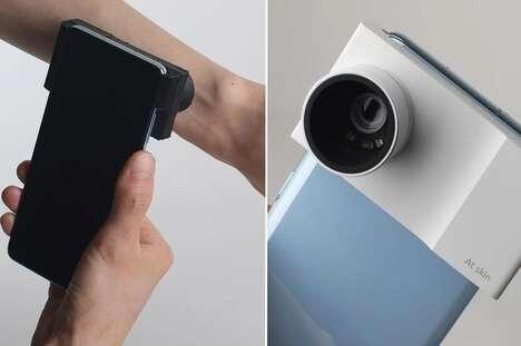 Skin Health-Detecting Cameras