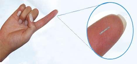 Implantable Glucose Sensors