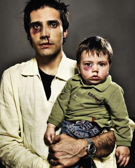 Battered Self-Portraits