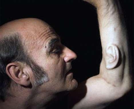 49 Incredible Implants & Transplants