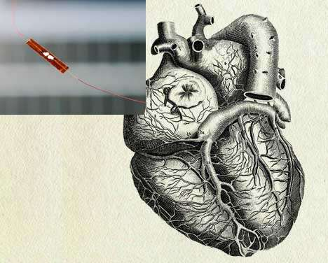 Heart-Powered Medical Devices