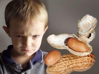 Allergy-Free Peanut In Development