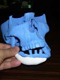 Print Custom Artifical Bones
