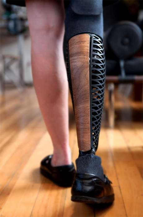 Bespoke Prosthetic Limbs