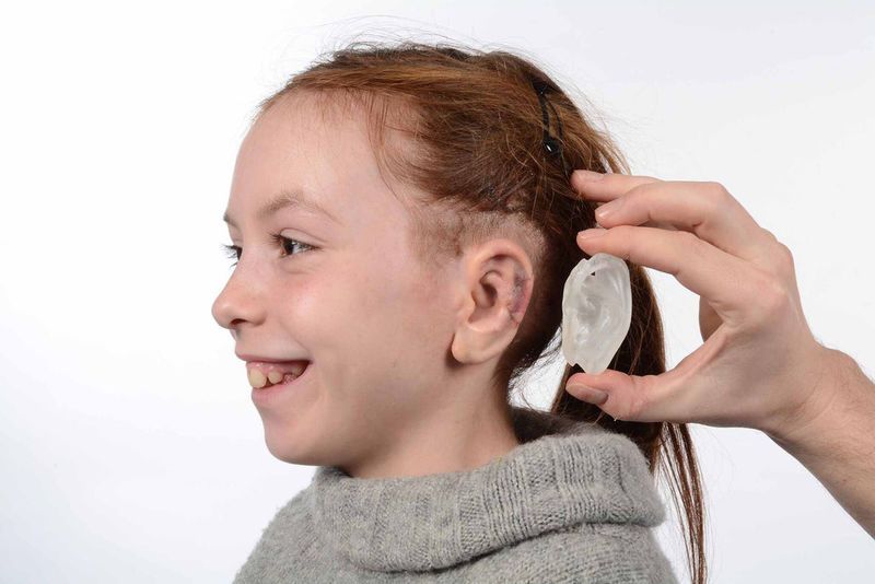 3D-Printed Ear Prosthetics