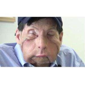 Male Face Transplants