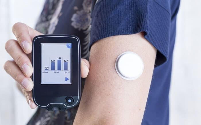 Pain-Free Glucose-Tracking Devices