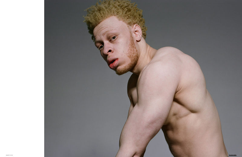 Inclusive Albino Editorials