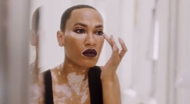 Vitiligo Model-Inclusive Beauty Campaigns
