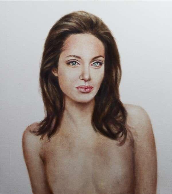 Post-Surgery Celebrity Portraits