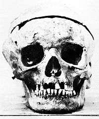 Buying Famous Skulls
