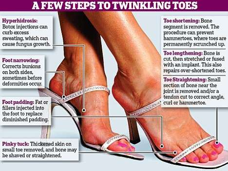 What Shoes Should I Wear To Reduce Bunions