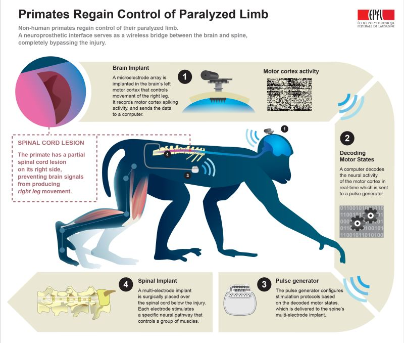 Paralysis-Mending Neural Implants
