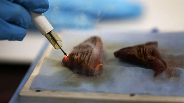 Cancer-Smelling Scalpels