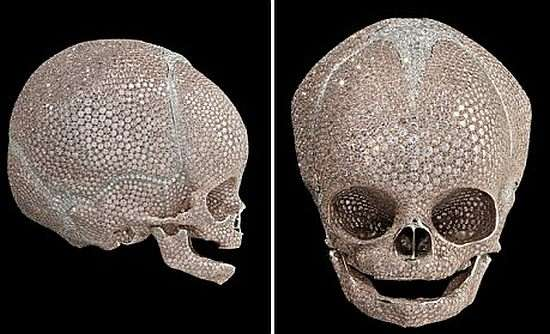 Blinged-Out Baby Skulls