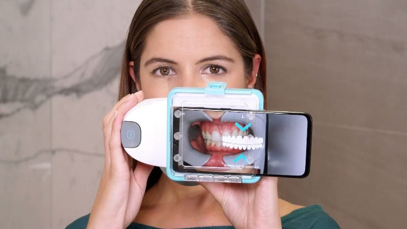 At-Home Oral Care Scanners