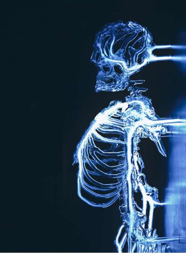 Illuminated Skeleton Installations