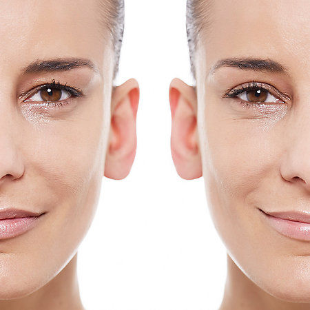 Lifting Eyelid Adhesives