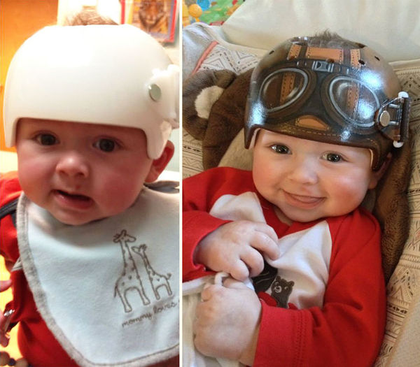 Adorably Painted Baby Helmets
