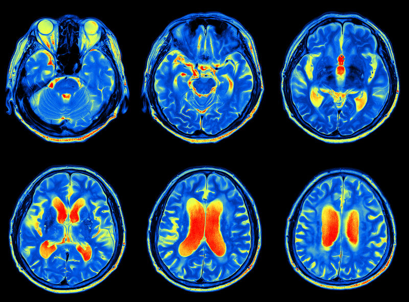 AI-Powered Health Predictions