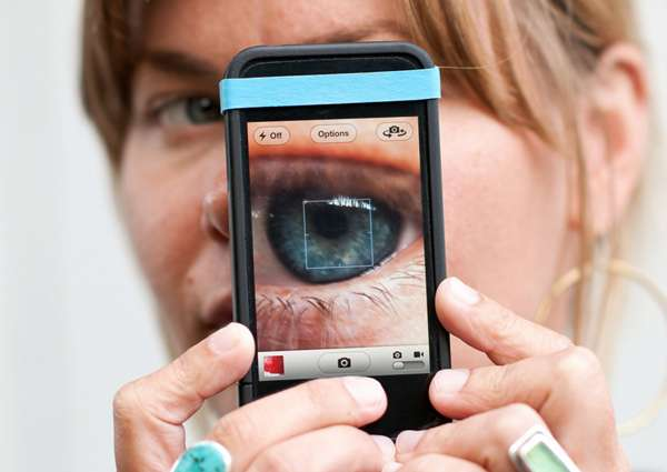 Elastic Smartphone Zoom Enhancers