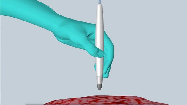 Cancer-Detecting Surgical Pens