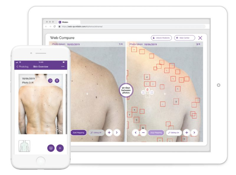 AI-Powered Mole Mapping Apps