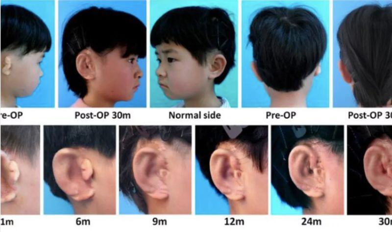 In Vitro Ear Regeneration