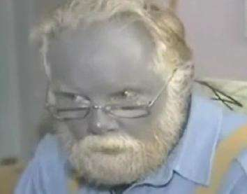 """Miracle"" Product Turns Man Into Smurf"
