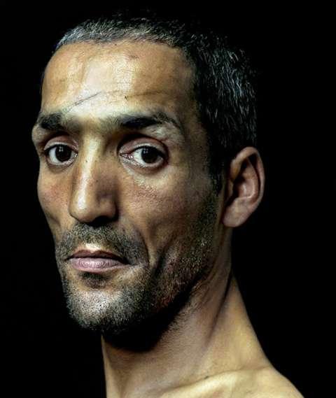 Disturbingly Disadvantaged Portraits