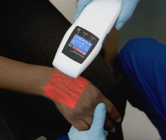 Portable Vein Detection