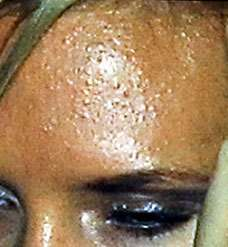 Digital Pimples Victoria Beckham Acne Was Created By Photoshop Posh