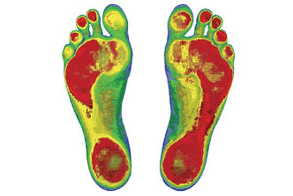 Injury-Preventing Footwear